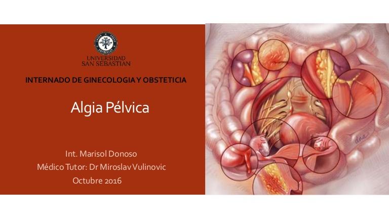 algiaplvica-161009183140-thumbnail-4