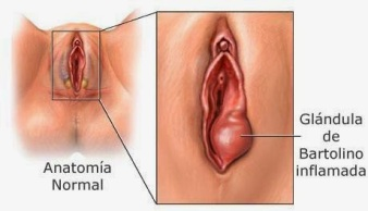 glandulas-bartolinoLamina8